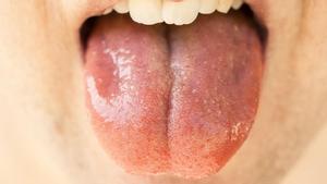¿Qué es la lengua COVID? Descubre un síntoma poco común del coronavirus