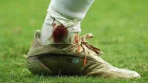 La dura imagen de cómo acabó el tobillo de Messi