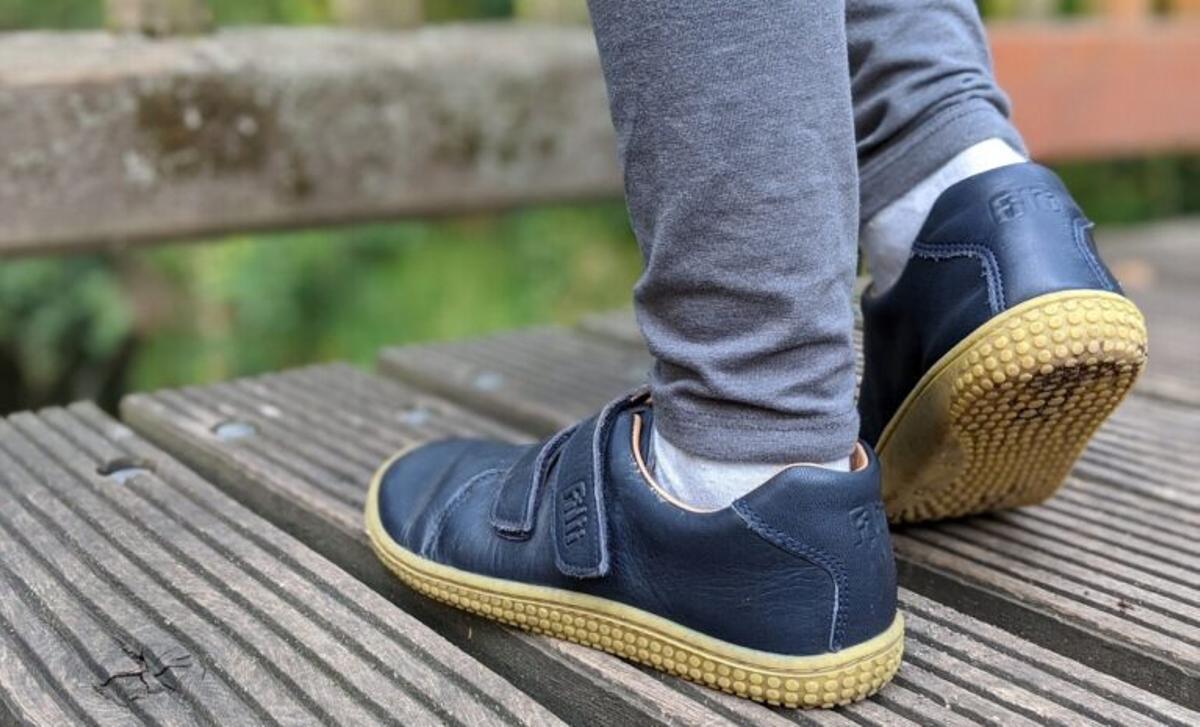 Heredar calzado puede causar malformaciones en el pie de los niños