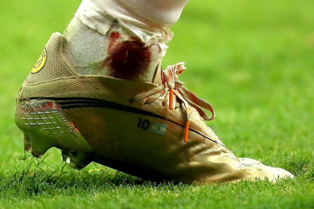 Apuestas Champions League: Los 3 COMBIPARTIDOS de Betfair para la jornada 1
