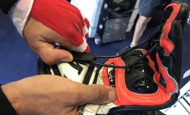El guante bionico de Jorge Martin, con sus tensores para mantener sus dedos estiurados.